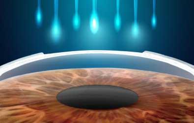 Phẫu Thuật Tật Khúc Xạ SmartSurf ACE (Laser Không Chạm)