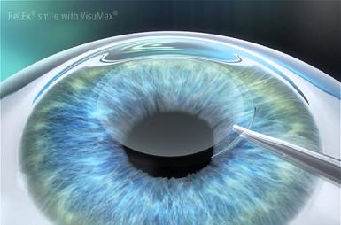 So sánh các phương pháp phẫu thuật laser cận thị hiện nay
