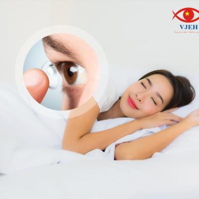 Ortho-K: Liệu pháp điều trị tật khúc xạ bằng kính áp trong ban đêm